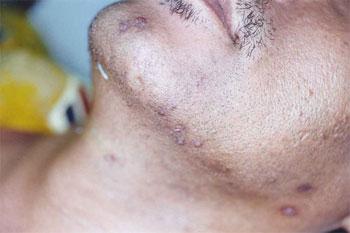 Hair Loss Treatment in Singapore | Hair Disorder - Ratnam Skin Centre